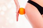 Cellulite: cause, rimedi e prevenzione
