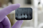 Come sono fatti i denti: le radici
